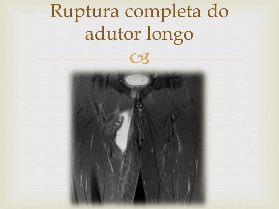 Ruptura completa do adutor longo