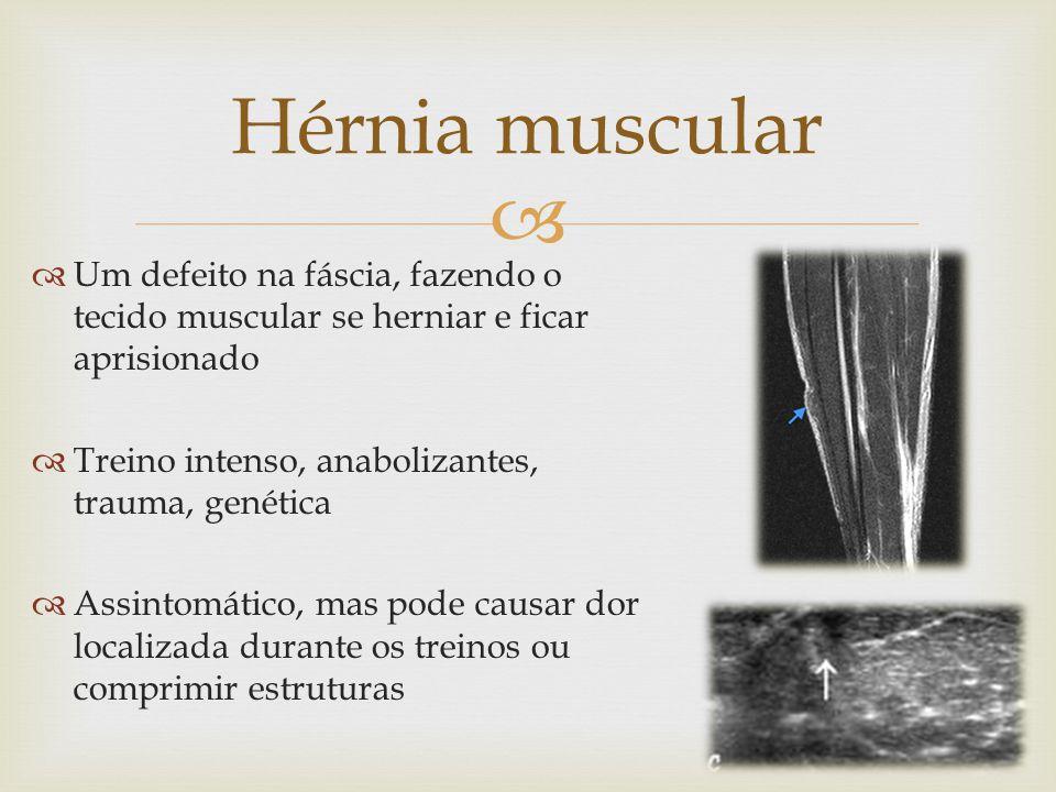 Hérnia muscular Um defeito na fáscia, fazendo o tecido muscular se herniar e ficar aprisionado. Treino intenso, anabolizantes, trauma, genética.