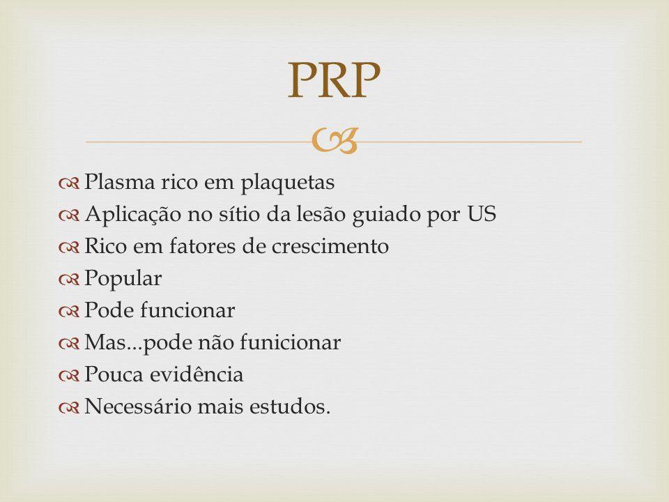 PRP Plasma rico em plaquetas Aplicação no sítio da lesão guiado por US