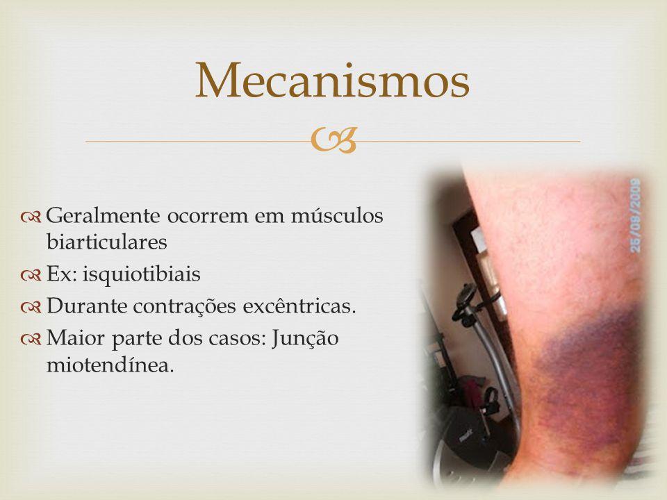 Mecanismos Geralmente ocorrem em músculos biarticulares