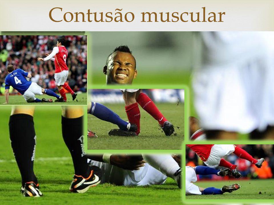 Contusão muscular