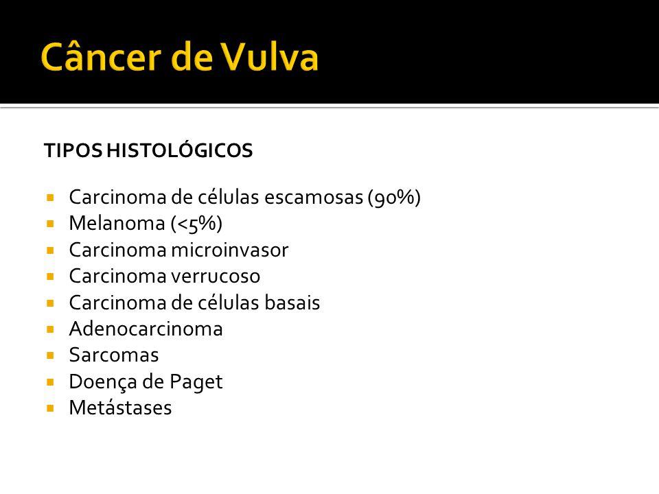 Câncer de Vulva Carcinoma de células escamosas (90%) Melanoma (<5%)