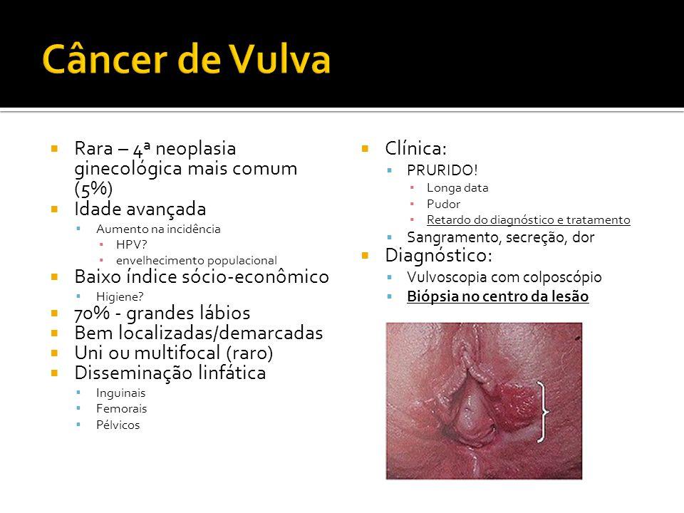 Câncer de Vulva Rara – 4ª neoplasia ginecológica mais comum (5%)
