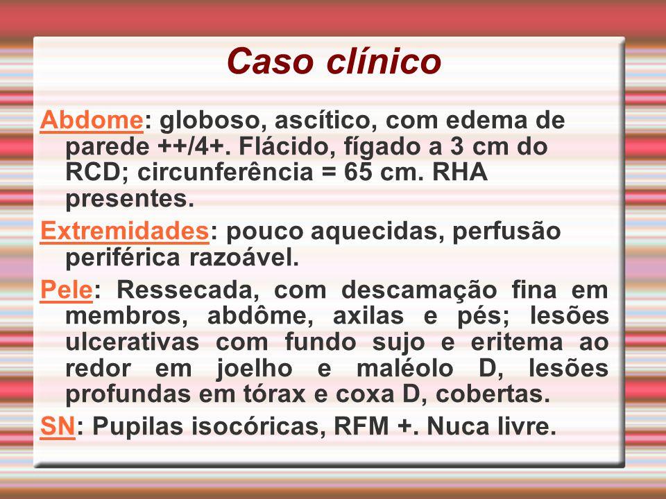 Caso clínico Abdome: globoso, ascítico, com edema de parede ++/4+. Flácido, fígado a 3 cm do RCD; circunferência = 65 cm. RHA presentes.