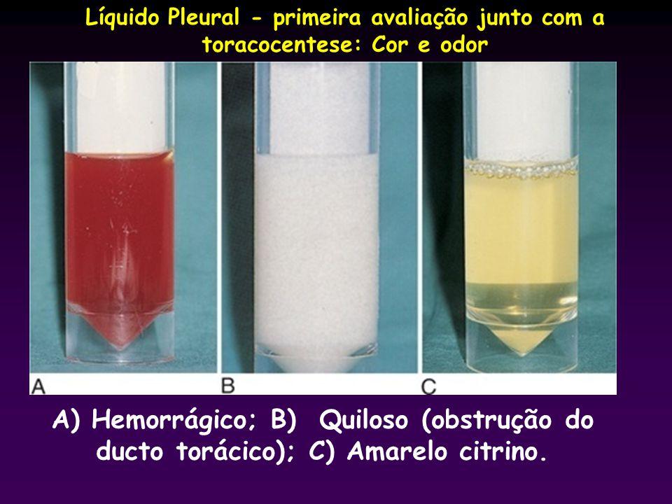 Líquido Pleural - primeira avaliação junto com a toracocentese: Cor e odor