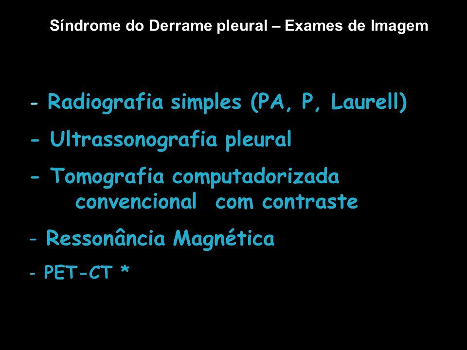 Síndrome do Derrame pleural – Exames de Imagem