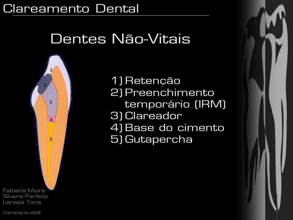 Dentes Não-Vitais Retenção Preenchimento temporário (IRM) Clareador