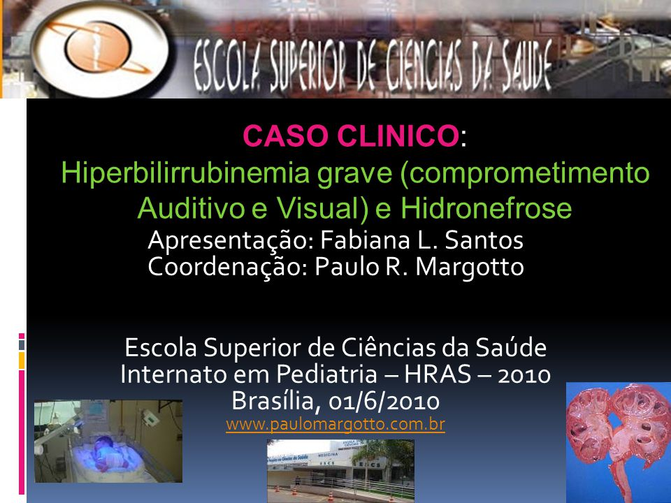 Hiperbilirrubinemia grave (comprometimento