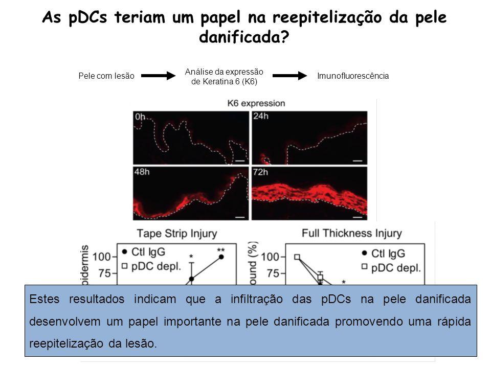 As pDCs teriam um papel na reepitelização da pele danificada