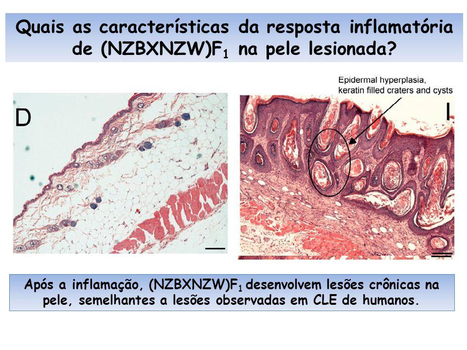 Quais as características da resposta inflamatória de (NZBXNZW)F1 na pele lesionada