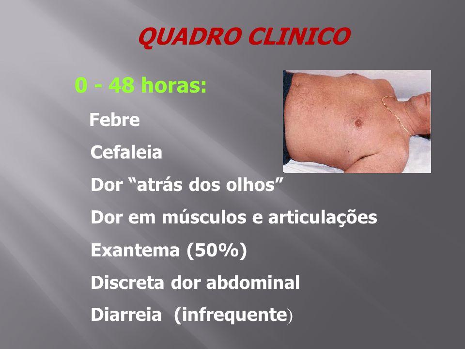 QUADRO CLINICO 0 - 48 horas: Cefaleia Dor atrás dos olhos