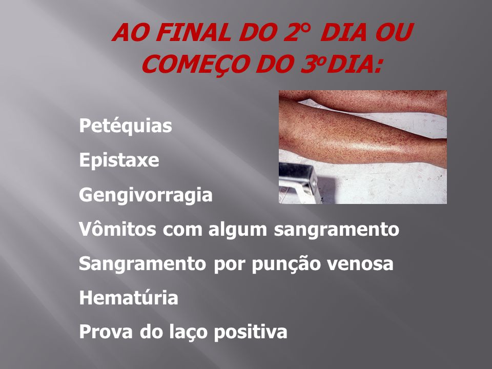 AO FINAL DO 2° DIA OU COMEÇO DO 3oDIA: