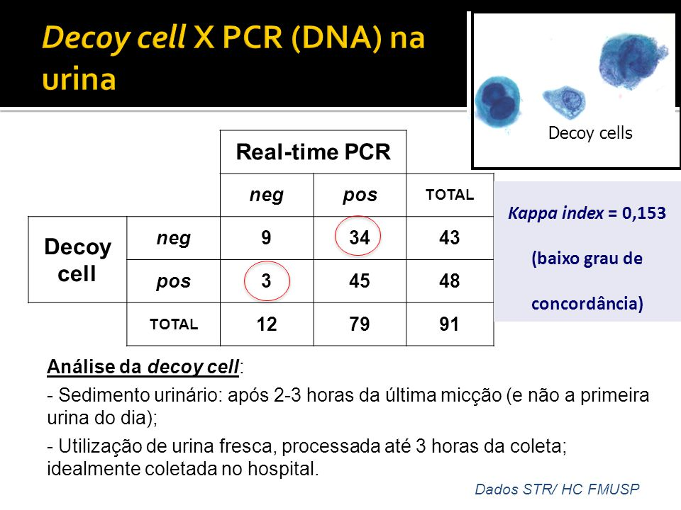 Decoy cell X PCR (DNA) na urina