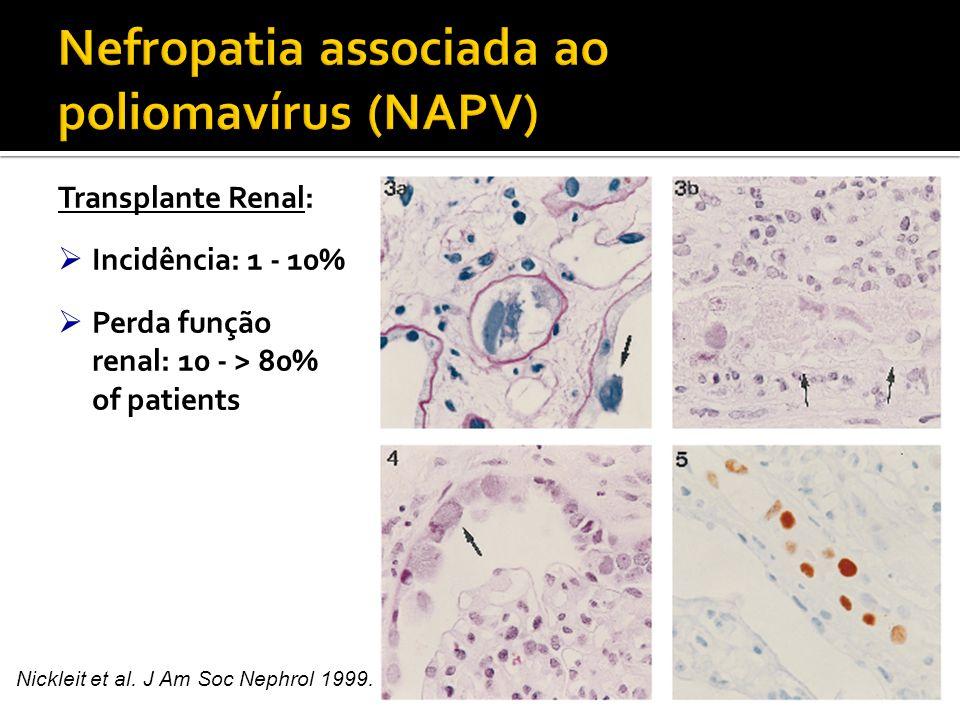 Nefropatia associada ao poliomavírus (NAPV)