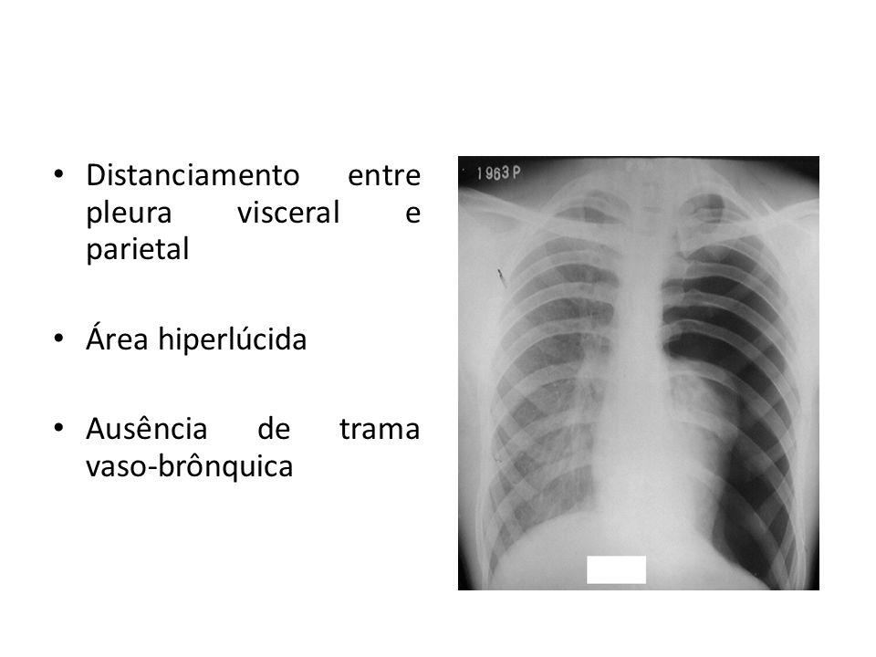 Distanciamento entre pleura visceral e parietal