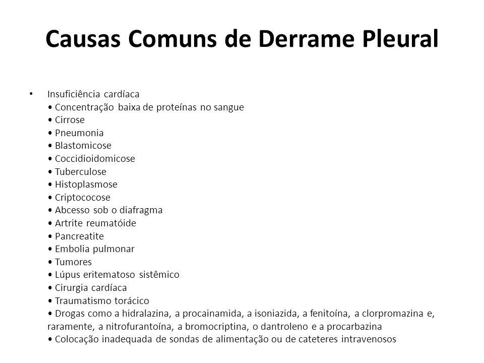 Causas Comuns de Derrame Pleural