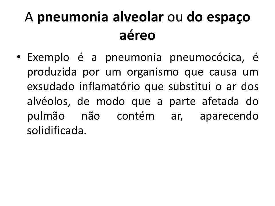 A pneumonia alveolar ou do espaço aéreo