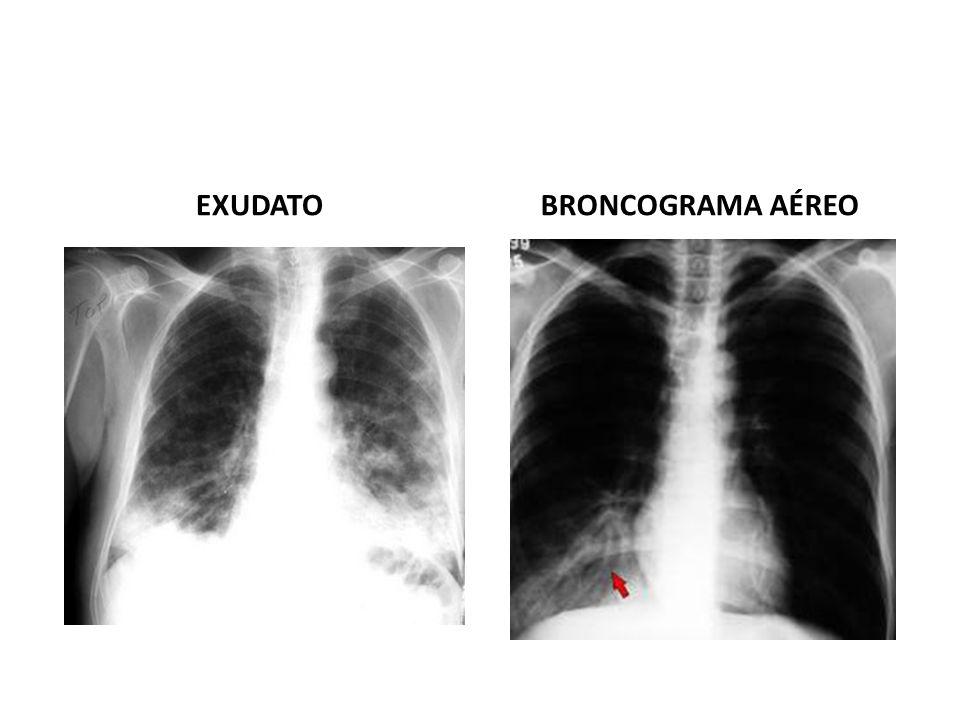EXUDATO BRONCOGRAMA AÉREO