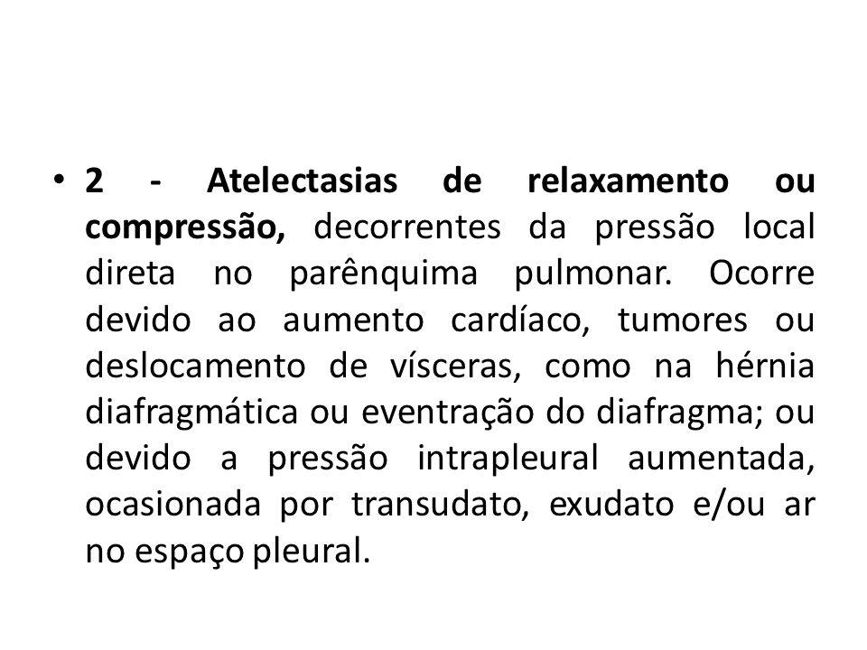 2 - Atelectasias de relaxamento ou compressão, decorrentes da pressão local direta no parênquima pulmonar.