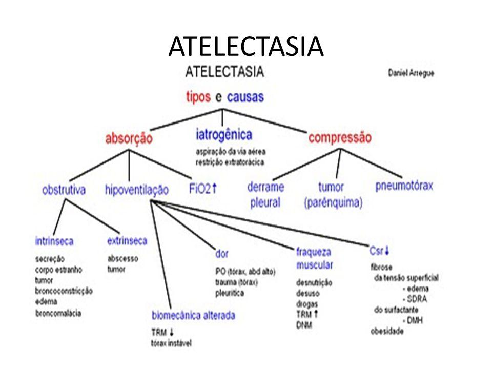 ATELECTASIA