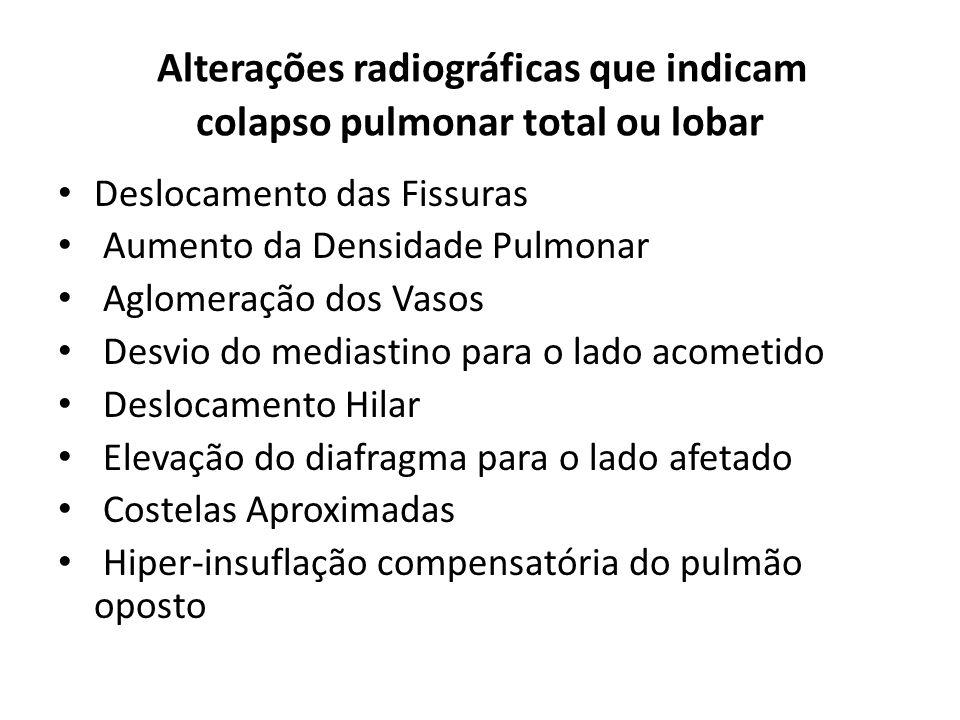 Alterações radiográficas que indicam colapso pulmonar total ou lobar
