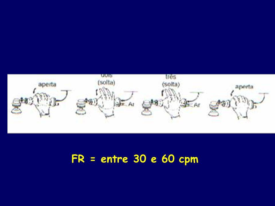 FR = entre 30 e 60 cpm