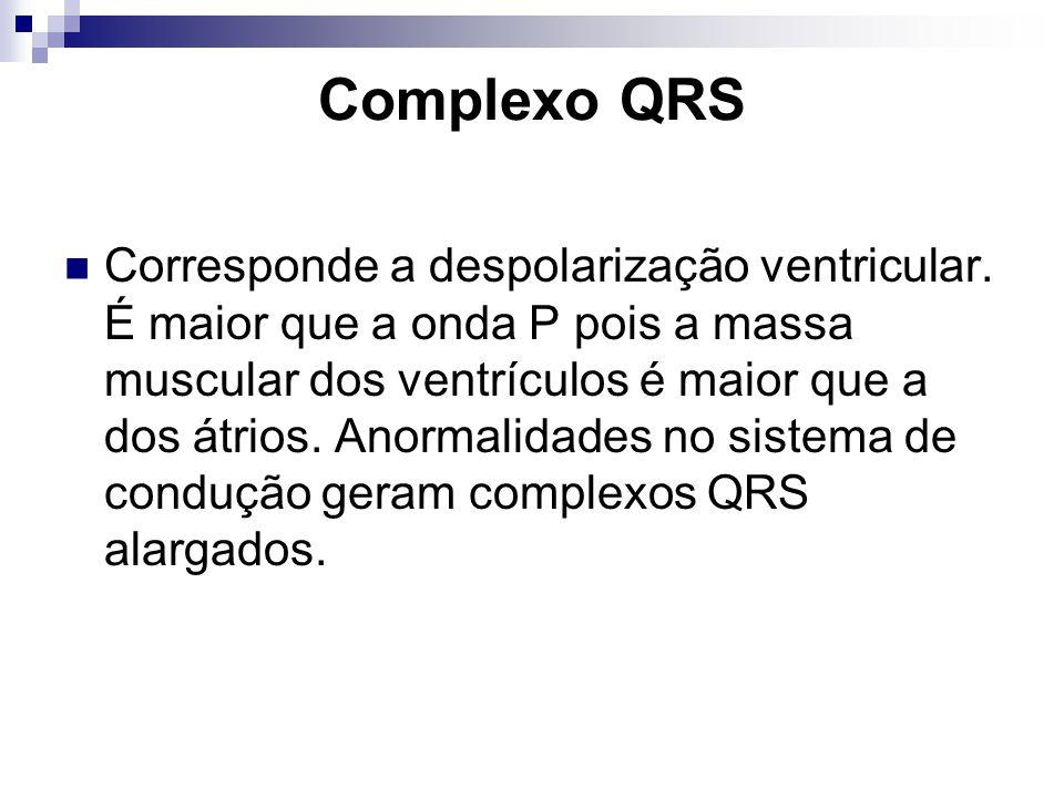Complexo QRS