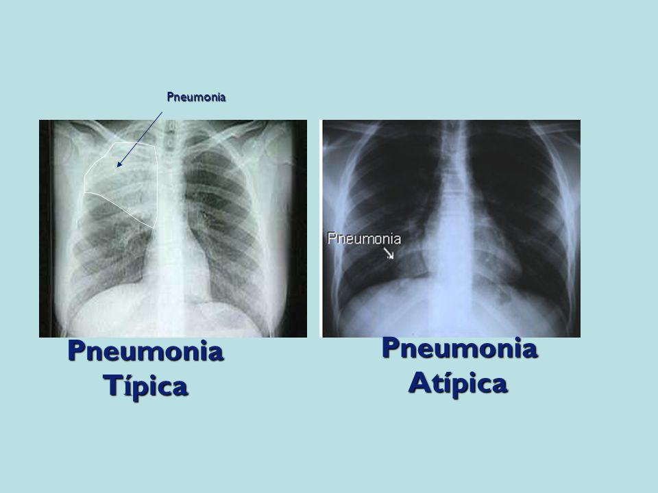 Pneumonia Típica Atípica
