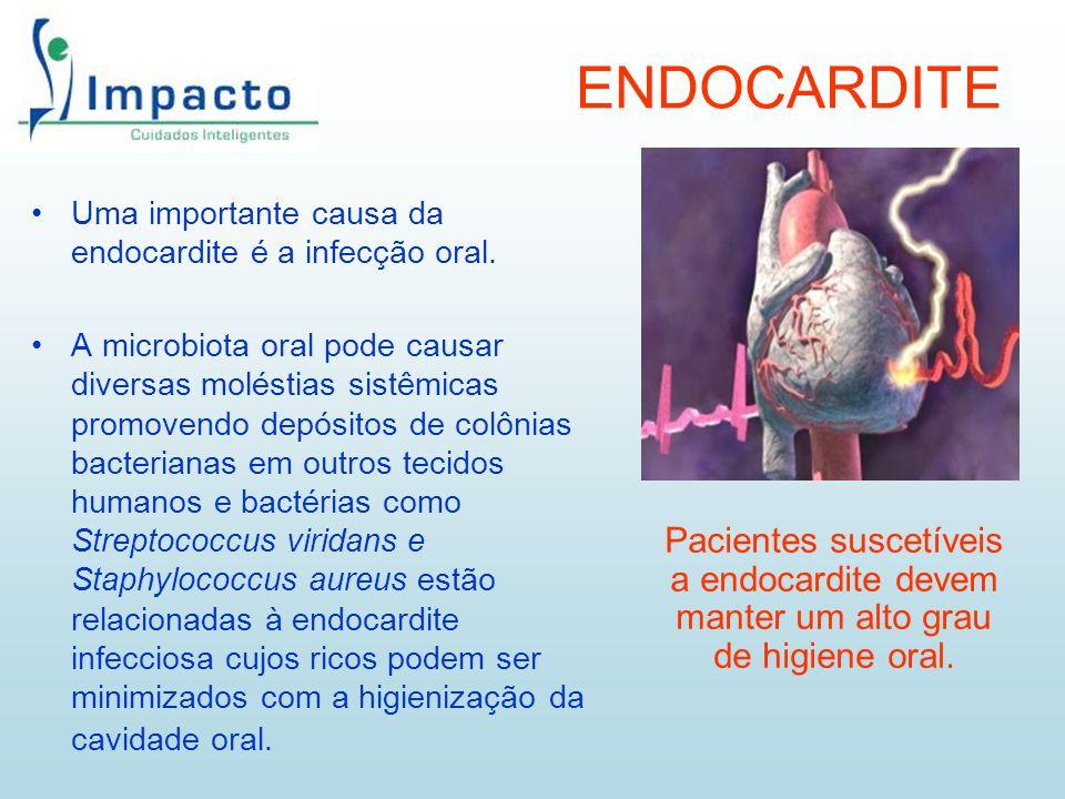 ENDOCARDITE Uma importante causa da endocardite é a infecção oral.