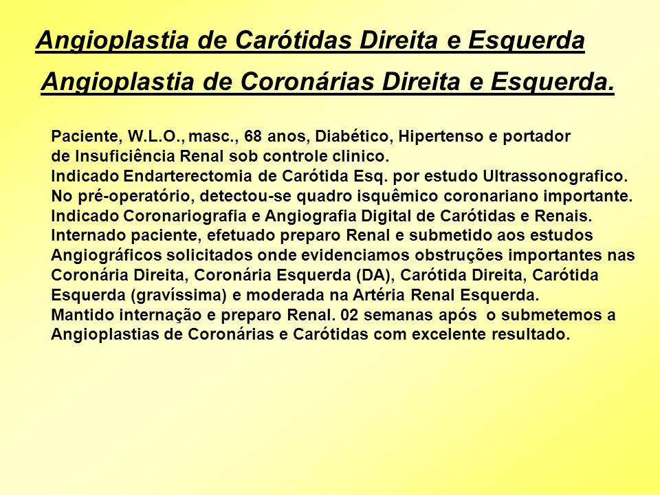 Angioplastia de Carótidas Direita e Esquerda