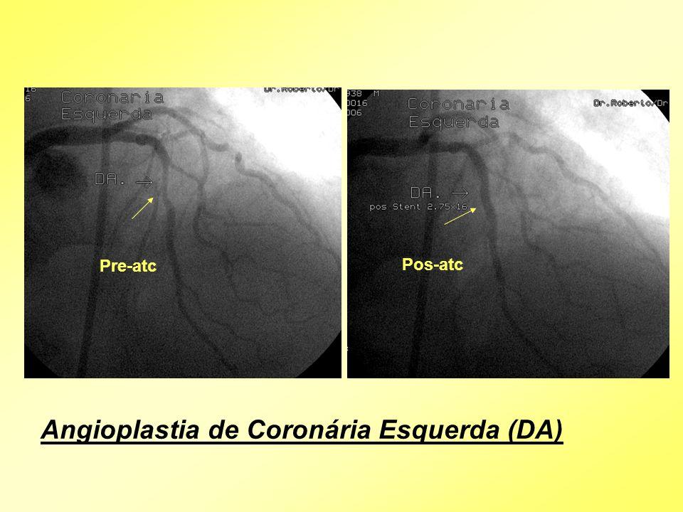 Angioplastia de Coronária Esquerda (DA)