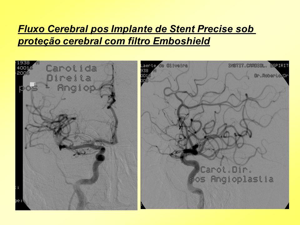 Fluxo Cerebral pos Implante de Stent Precise sob