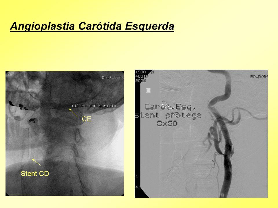 Angioplastia Carótida Esquerda