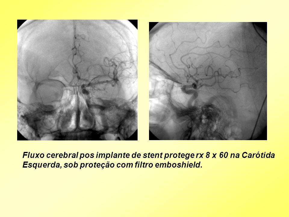 Fluxo cerebral pos implante de stent protege rx 8 x 60 na Carótida