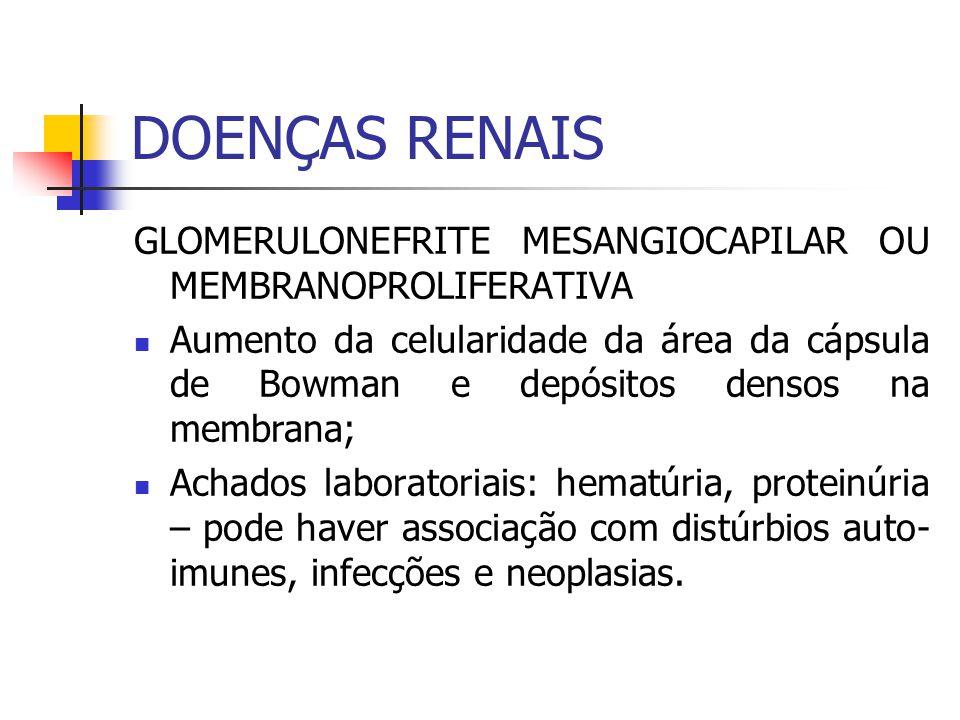 DOENÇAS RENAIS GLOMERULONEFRITE MESANGIOCAPILAR OU MEMBRANOPROLIFERATIVA.