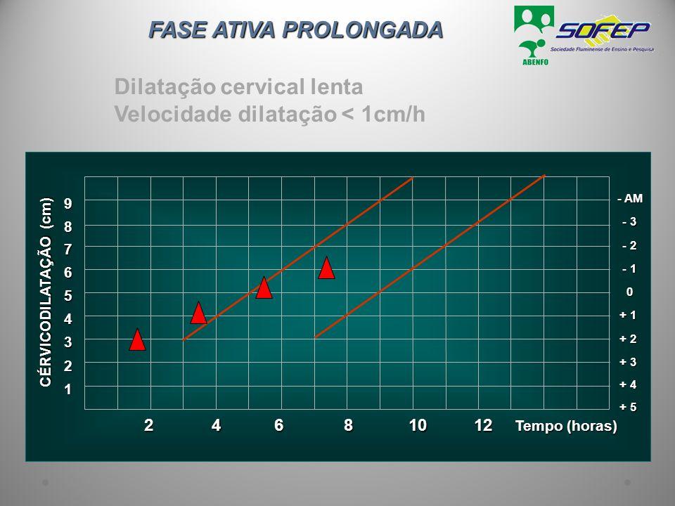 Dilatação cervical lenta Velocidade dilatação < 1cm/h