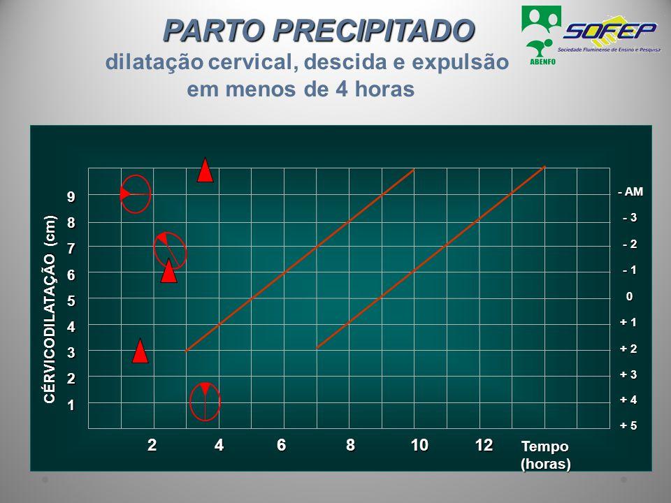 PARTO PRECIPITADO dilatação cervical, descida e expulsão em menos de 4 horas