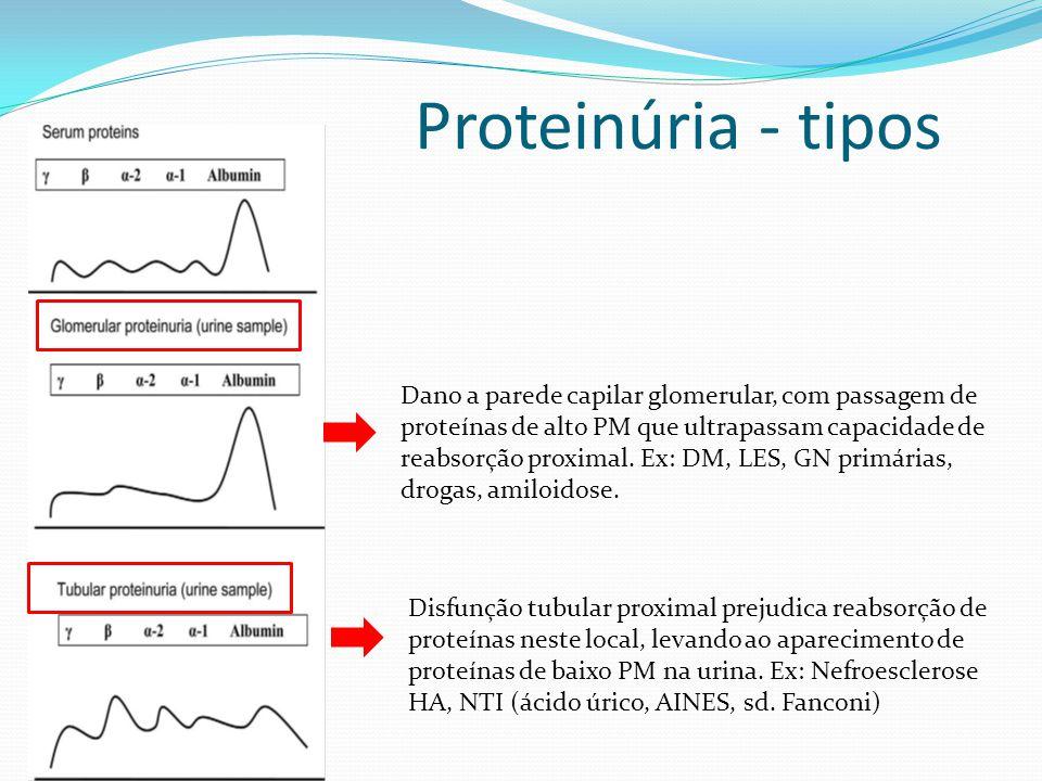 Proteinúria - tipos