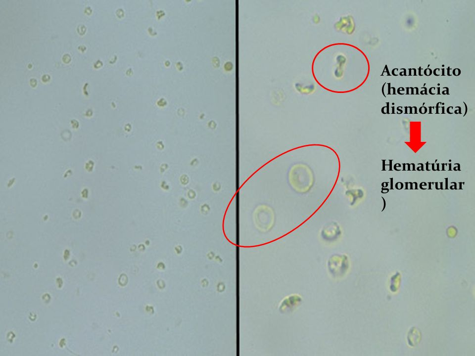 Acantócito (hemácia dismórfica)