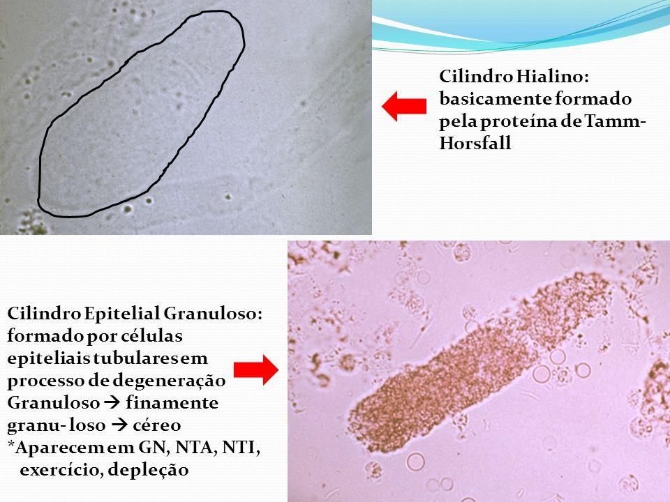 Cilindro Hialino: basicamente formado pela proteína de Tamm-Horsfall