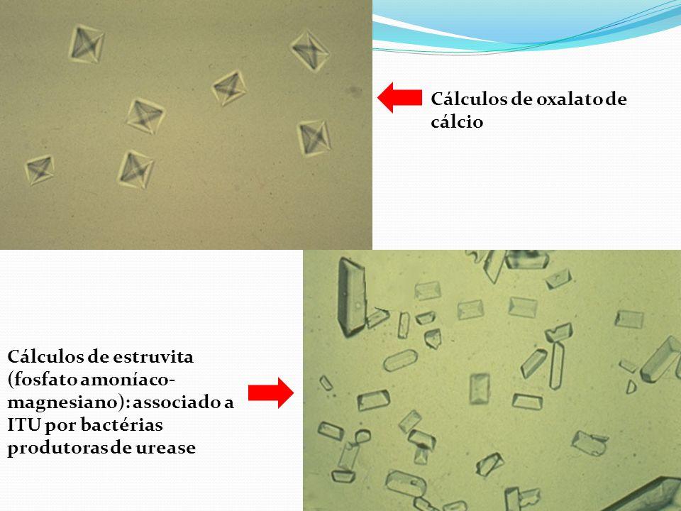 Cálculos de oxalato de cálcio