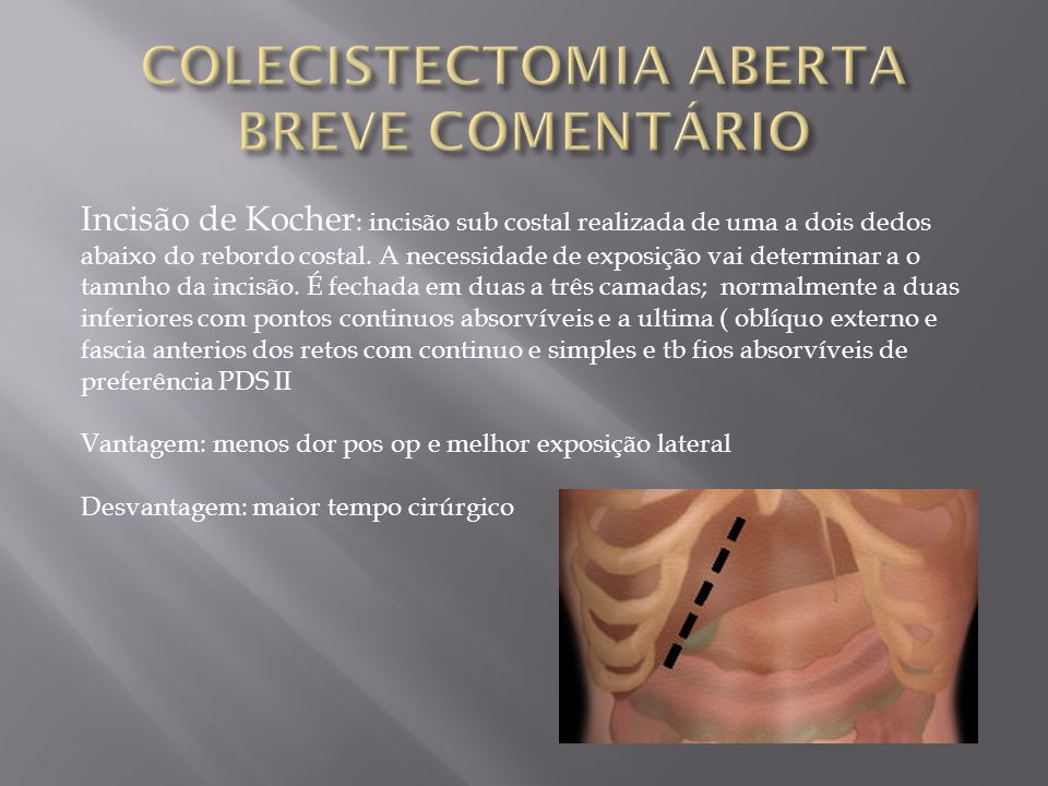 COLECISTECTOMIA ABERTA BREVE COMENTÁRIO