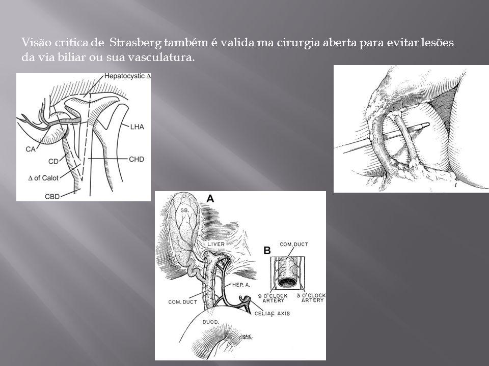 Visão critica de Strasberg também é valida ma cirurgia aberta para evitar lesões da via biliar ou sua vasculatura.