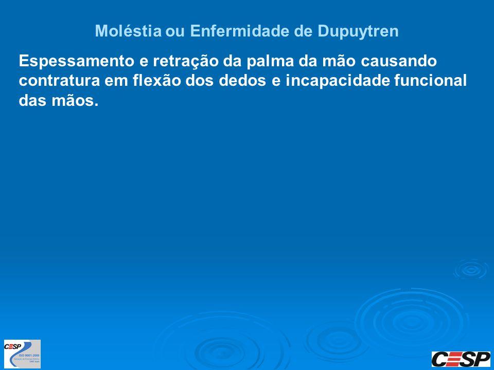 Moléstia ou Enfermidade de Dupuytren