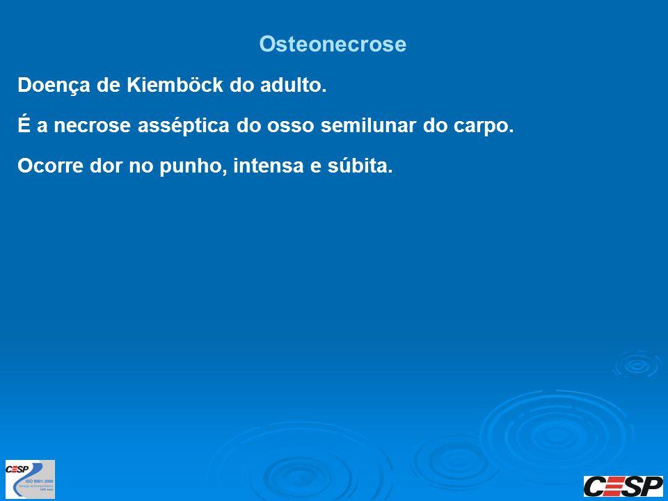 Osteonecrose Doença de Kiemböck do adulto.