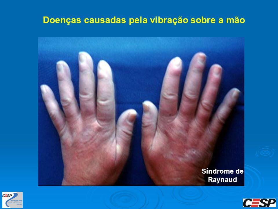 Doenças causadas pela vibração sobre a mão