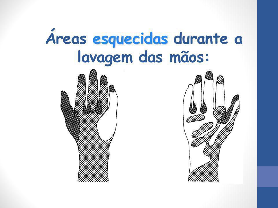 Áreas esquecidas durante a lavagem das mãos: