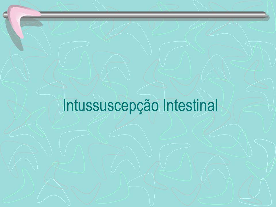 Intussuscepção Intestinal