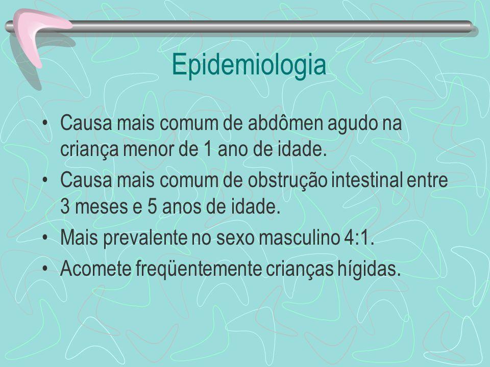 Epidemiologia Causa mais comum de abdômen agudo na criança menor de 1 ano de idade.