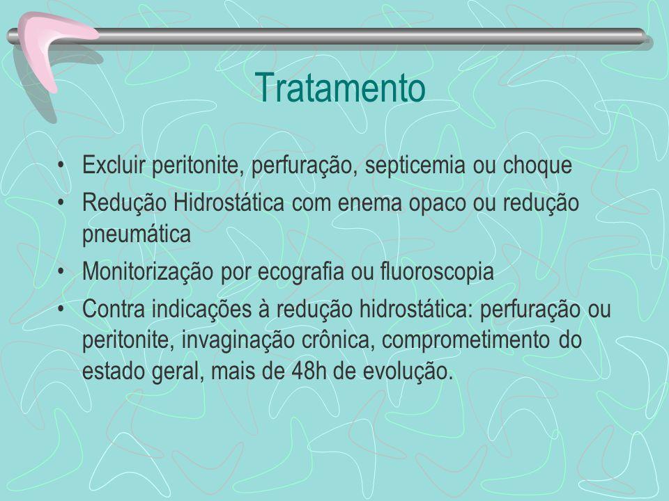 Tratamento Excluir peritonite, perfuração, septicemia ou choque